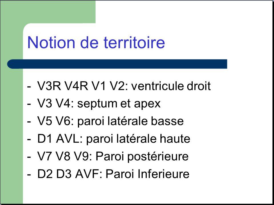 Notion de territoire V3R V4R V1 V2: ventricule droit