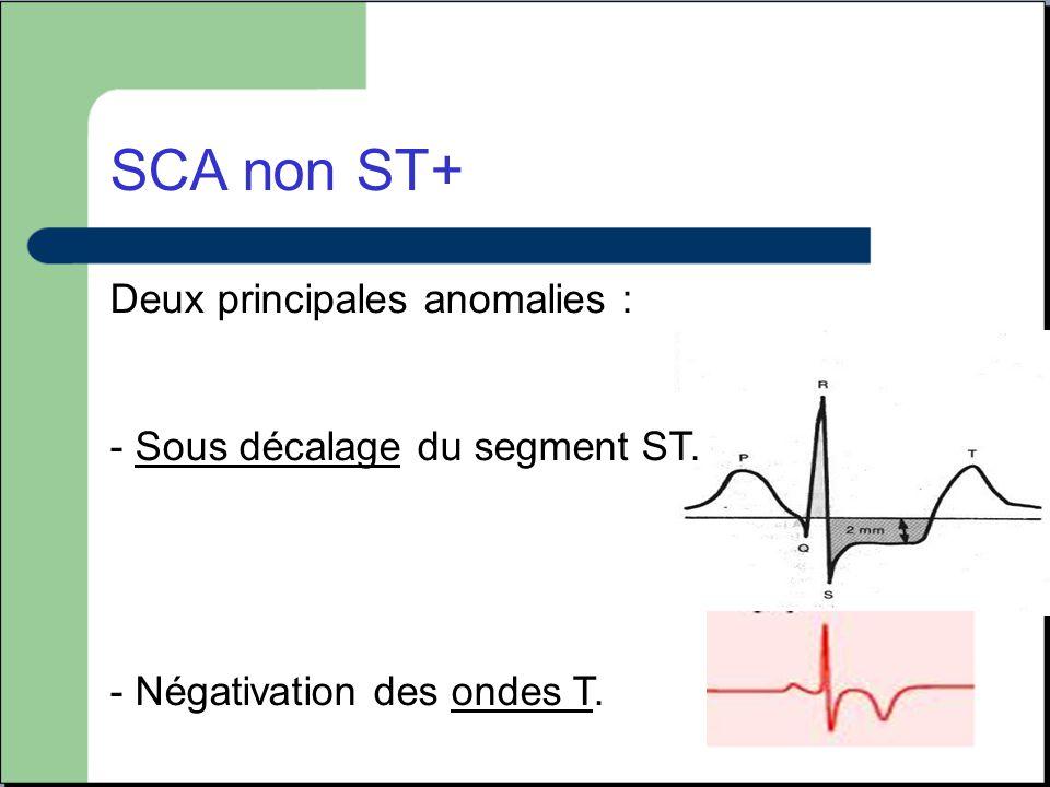 SCA non ST+ Deux principales anomalies :