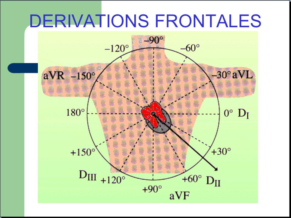 DERIVATIONS FRONTALES