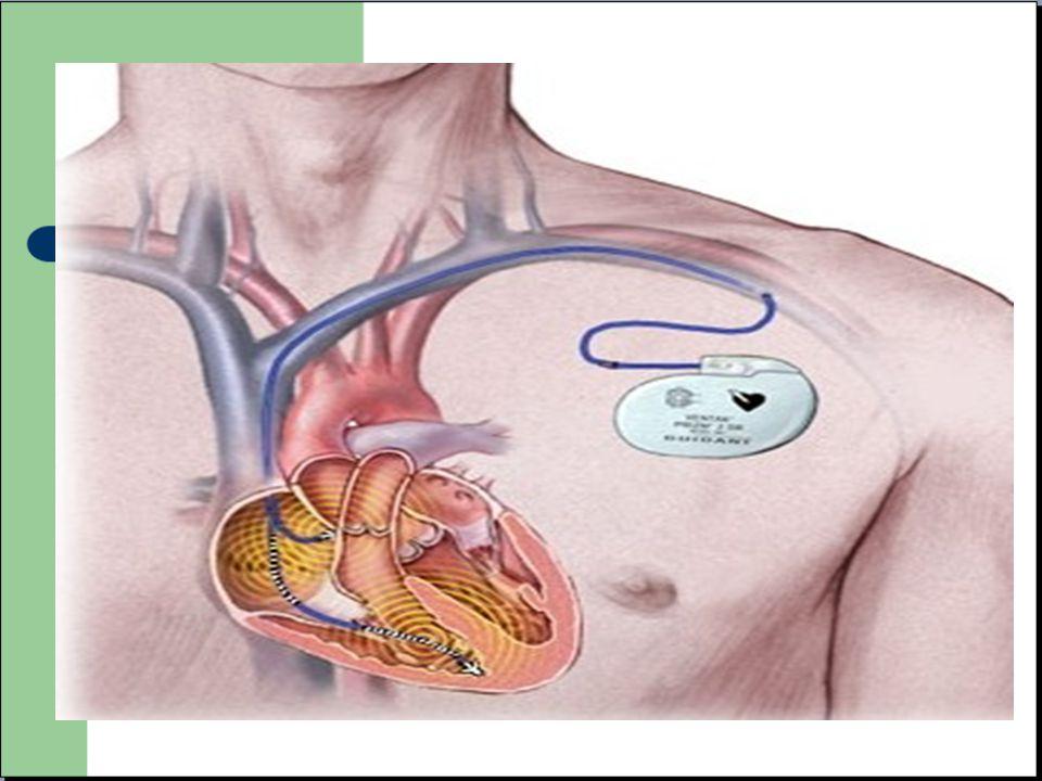 ECG electro-entrainé - Visualisation des « spikes » avant le QRS ou l onde P.