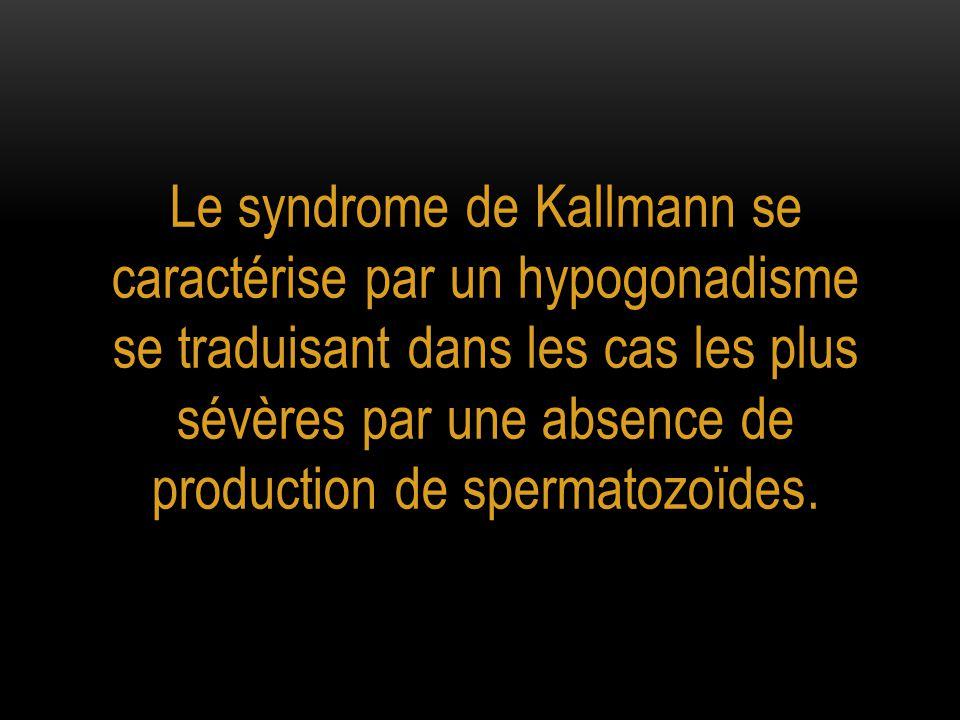 Le syndrome de Kallmann se caractérise par un hypogonadisme se traduisant dans les cas les plus sévères par une absence de production de spermatozoïdes.