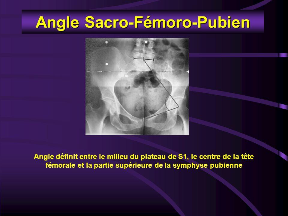 Angle Sacro-Fémoro-Pubien