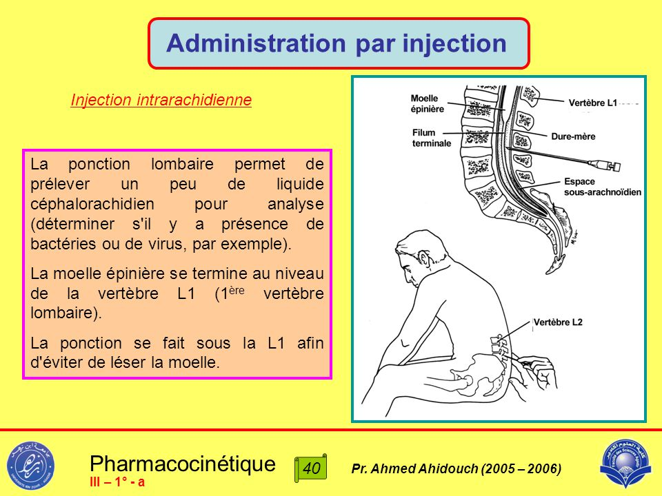 Administration par injection