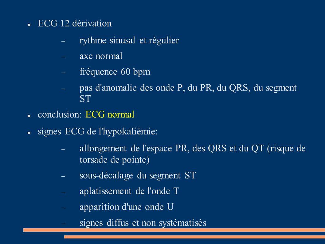ECG 12 dérivation rythme sinusal et régulier. axe normal. fréquence 60 bpm. pas d anomalie des onde P, du PR, du QRS, du segment ST.