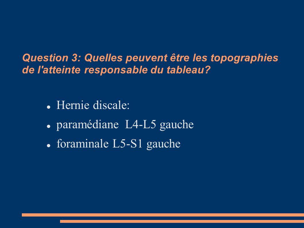 paramédiane L4-L5 gauche foraminale L5-S1 gauche