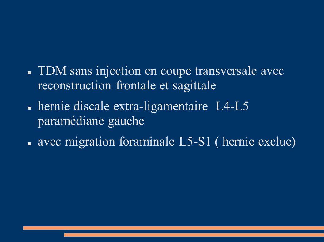 TDM sans injection en coupe transversale avec reconstruction frontale et sagittale
