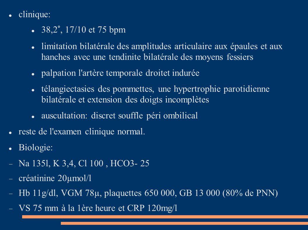 clinique: 38,2°, 17/10 et 75 bpm.