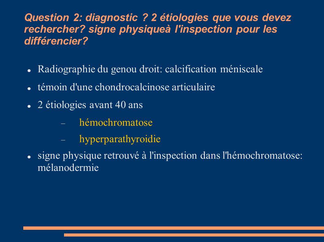 Question 2: diagnostic. 2 étiologies que vous devez rechercher