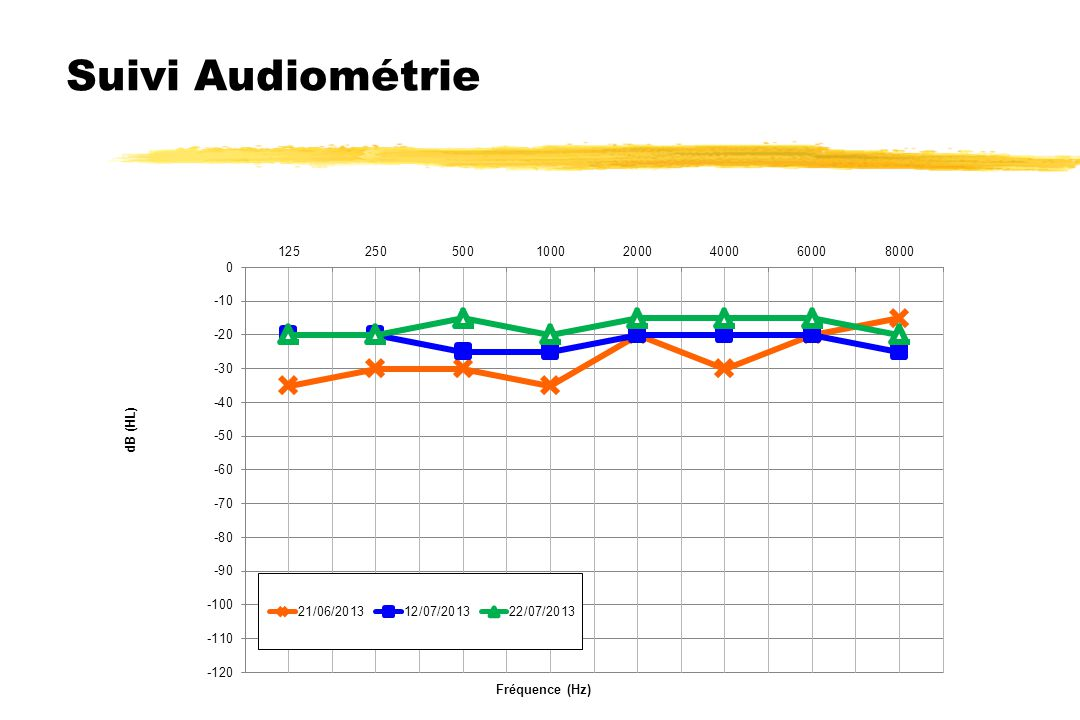 Suivi Audiométrie