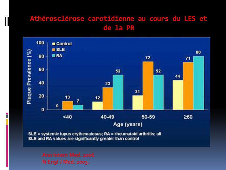 Athérosclérose carotidienne au cours du LES et de la PR