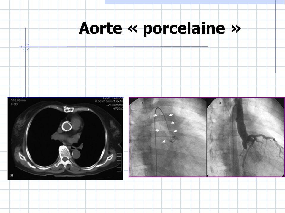 Aorte « porcelaine »