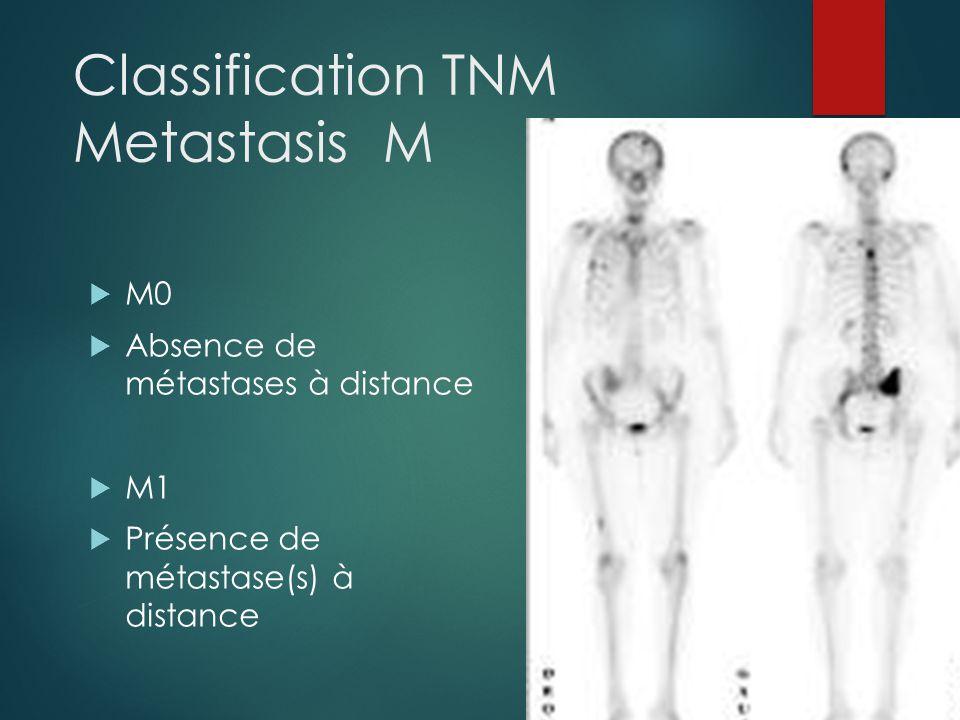 Classification TNM Metastasis M