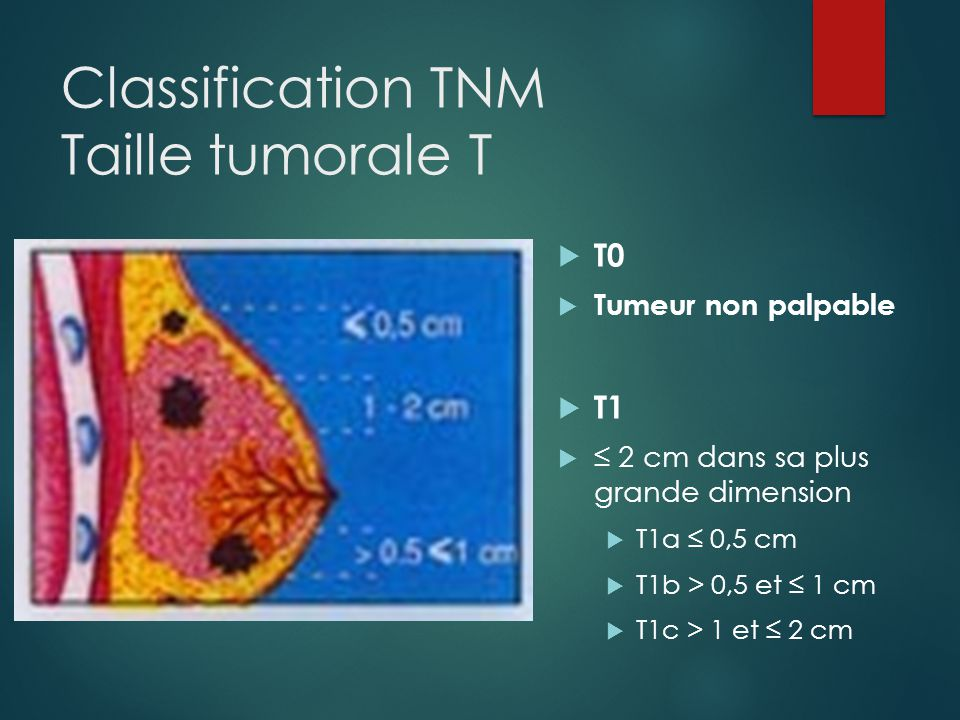 Classification TNM Taille tumorale T