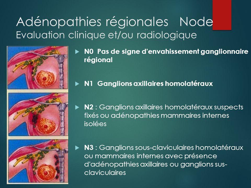 Adénopathies régionales Node Evaluation clinique et/ou radiologique