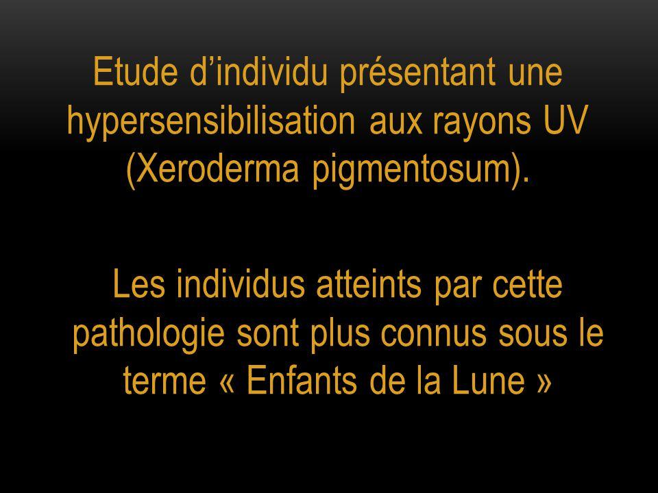 Etude d'individu présentant une hypersensibilisation aux rayons UV (Xeroderma pigmentosum).