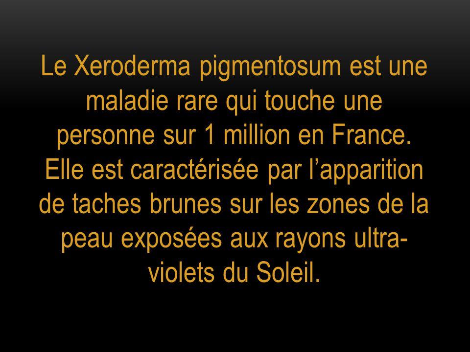 Le Xeroderma pigmentosum est une maladie rare qui touche une personne sur 1 million en France.
