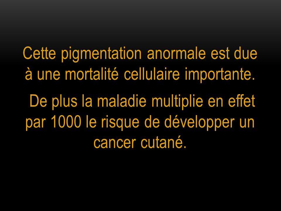 Cette pigmentation anormale est due à une mortalité cellulaire importante.