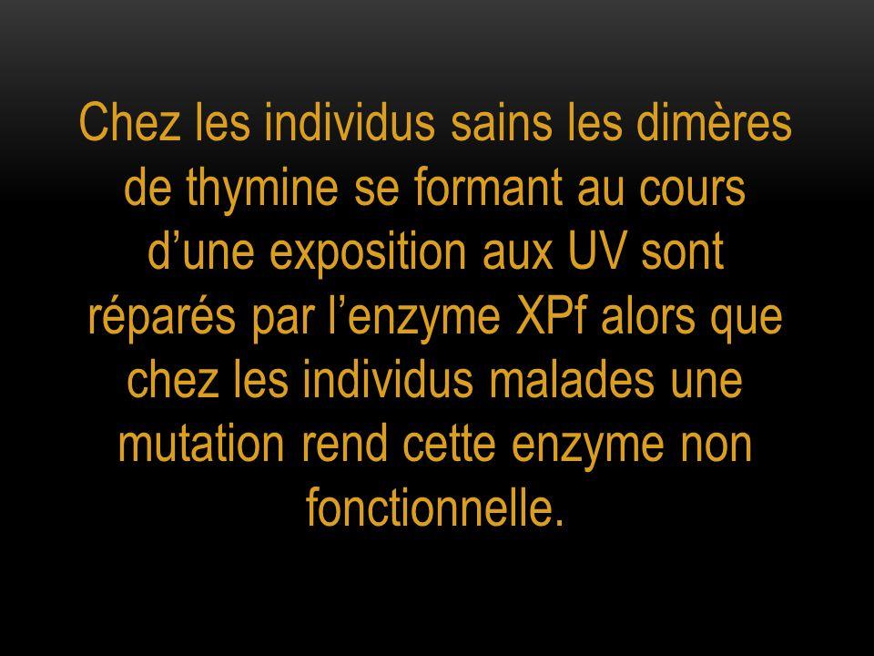 Chez les individus sains les dimères de thymine se formant au cours d'une exposition aux UV sont réparés par l'enzyme XPf alors que chez les individus malades une mutation rend cette enzyme non fonctionnelle.