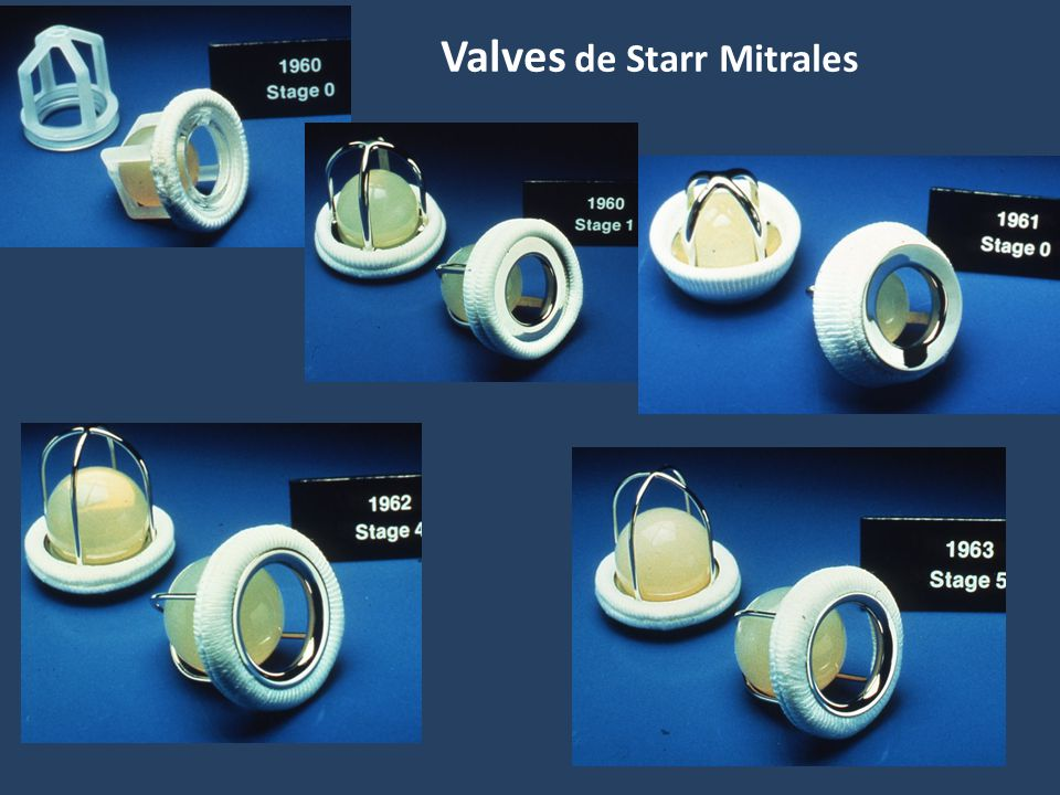 Valves de Starr Mitrales