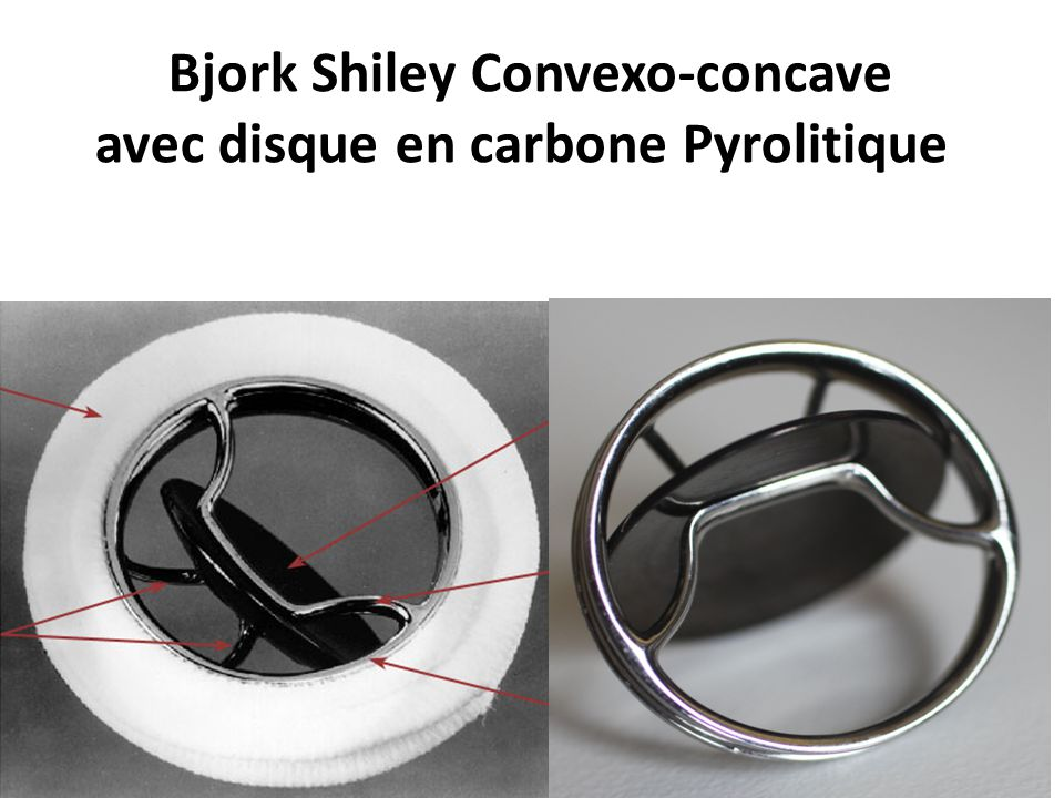 Bjork Shiley Convexo-concave avec disque en carbone Pyrolitique