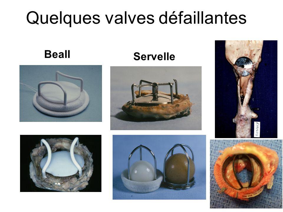 Quelques valves défaillantes