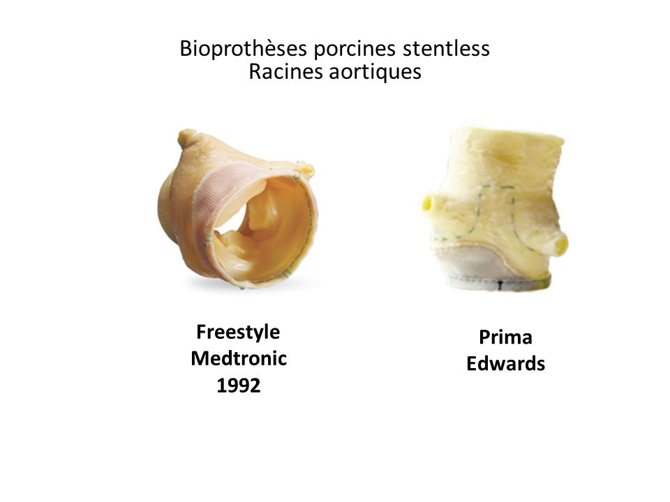 Bioprothèses porcines stentless