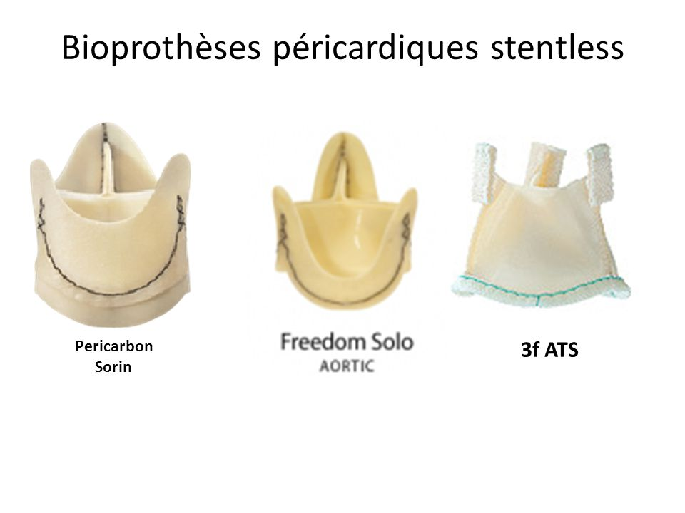 Bioprothèses péricardiques stentless