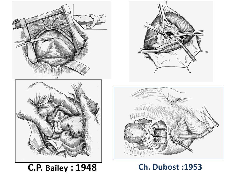 Bailey eut le mérite de mener ce combat seul contre tous : les médecins de Philadelphie se liguèrent contre lui et à la suite de plusieurs décès, il perdit son poste de chirurgien.