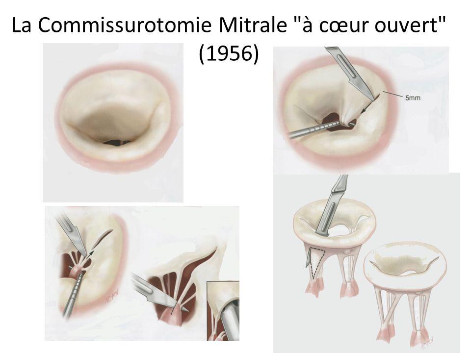 La Commissurotomie Mitrale à cœur ouvert (1956)