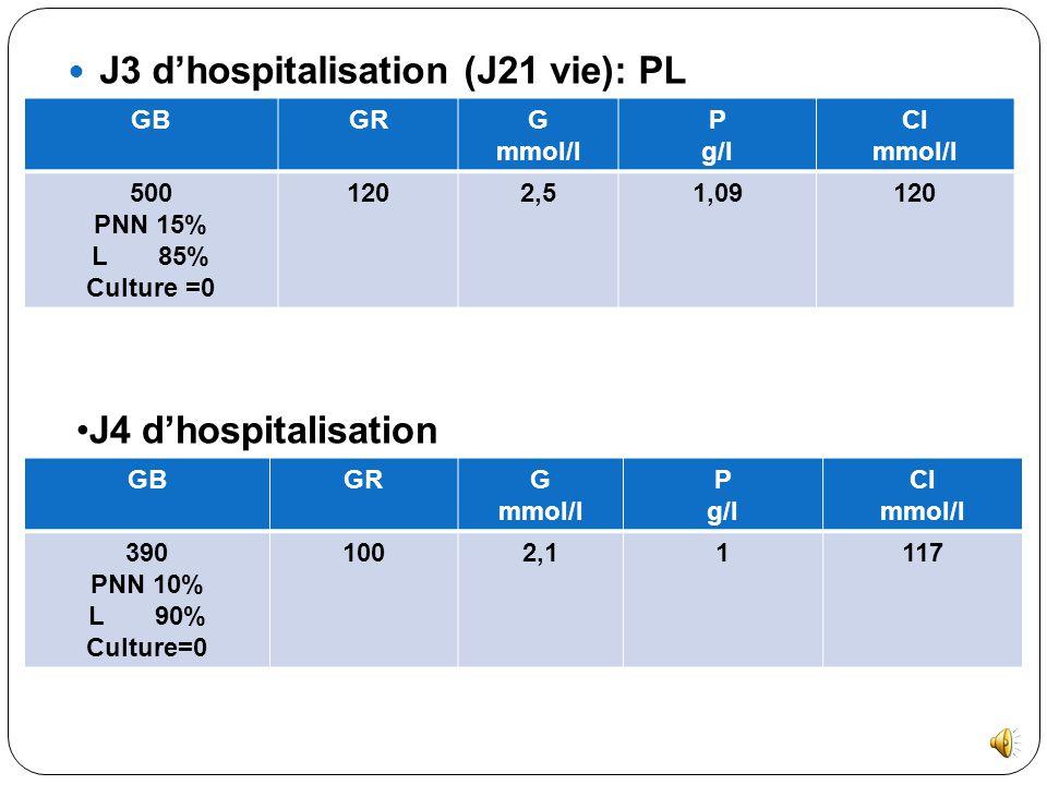 J3 d'hospitalisation (J21 vie): PL