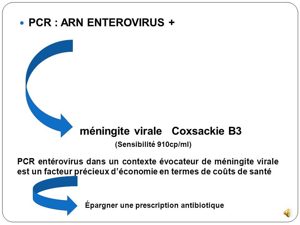 méningite virale Coxsackie B3