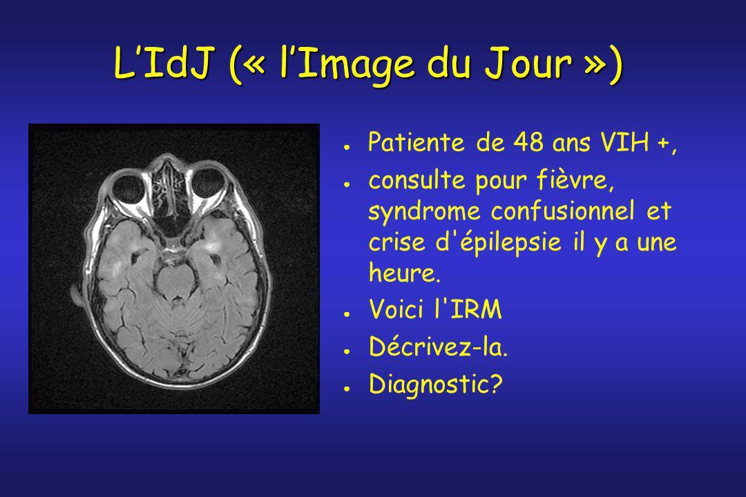 L'IdJ (« l'Image du Jour »)