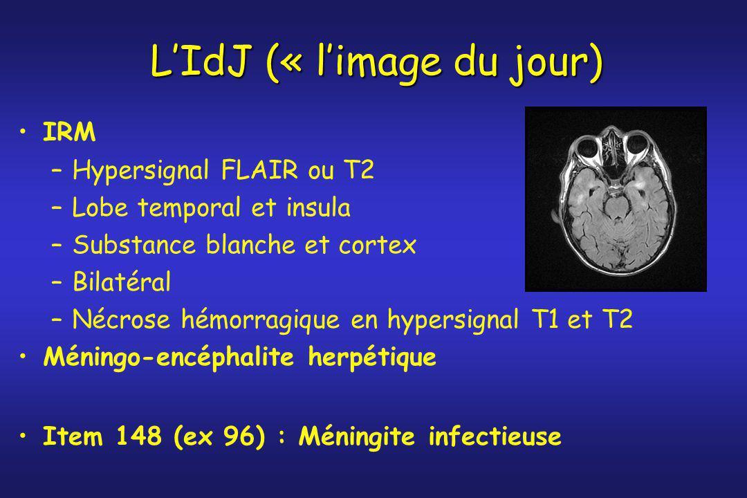 L'IdJ (« l'image du jour)