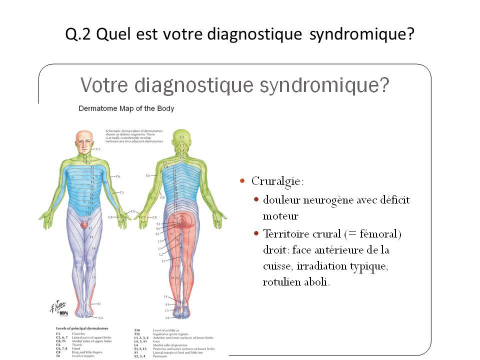 Q.2 Quel est votre diagnostique syndromique