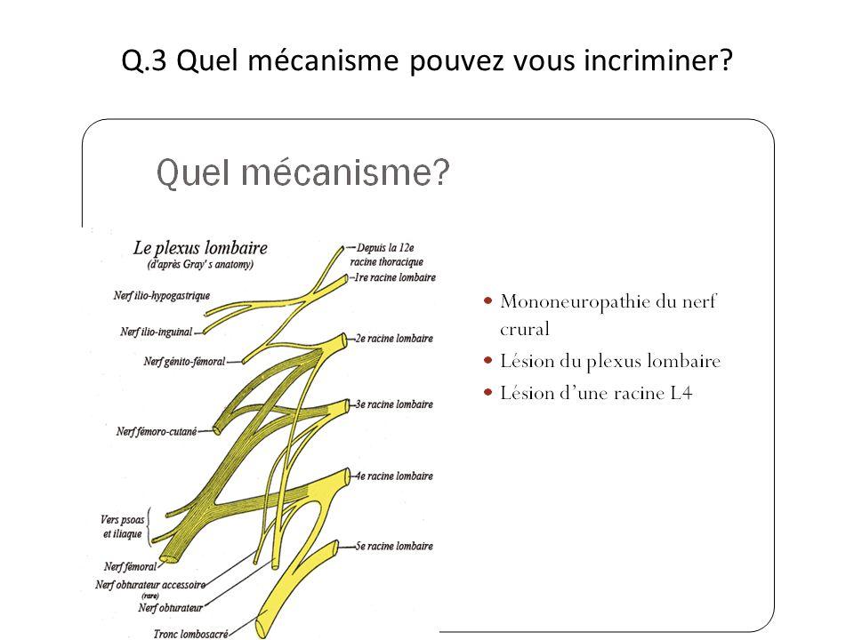 Q.3 Quel mécanisme pouvez vous incriminer