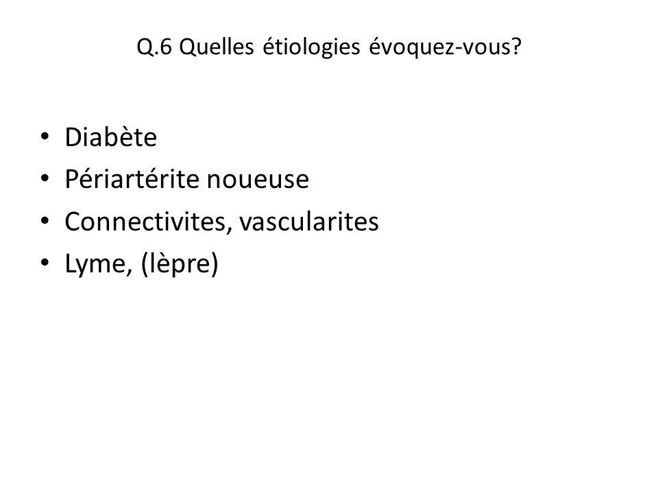 Q.6 Quelles étiologies évoquez-vous