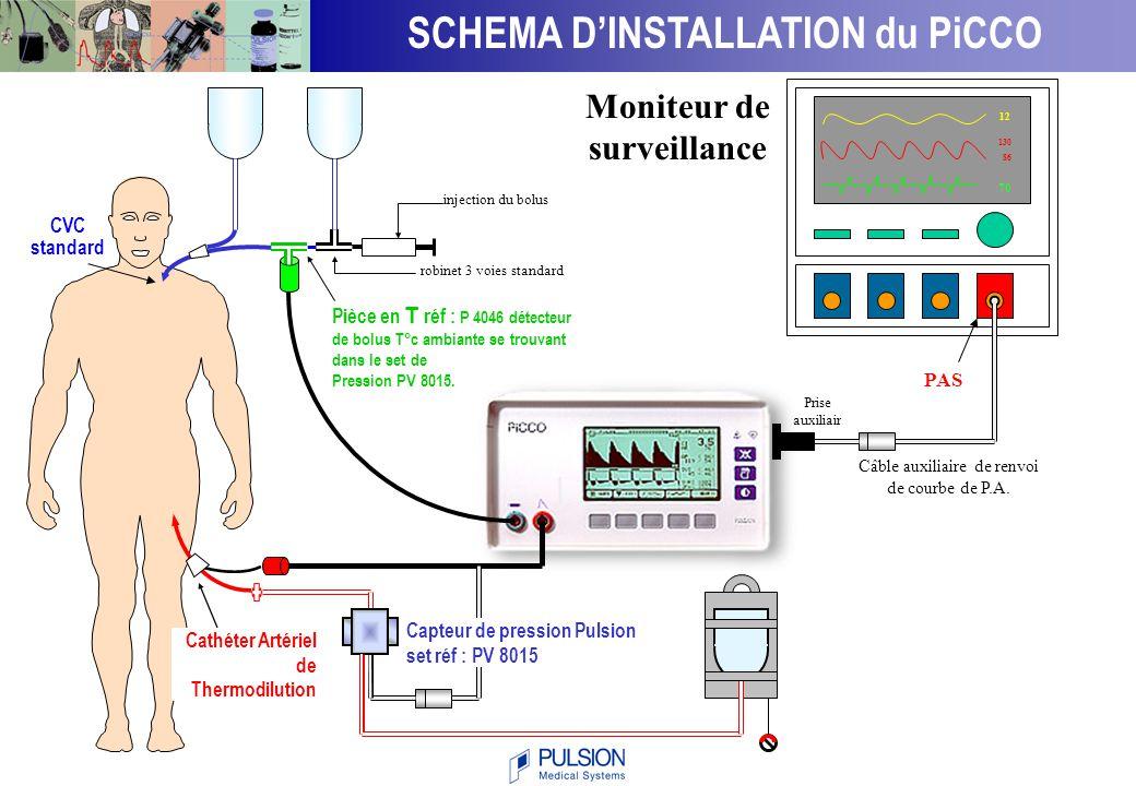 SCHEMA D'INSTALLATION du PiCCO Moniteur de surveillance