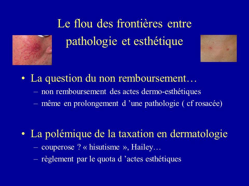Le flou des frontières entre pathologie et esthétique