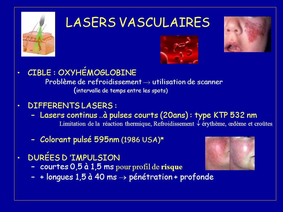 LASERS VASCULAIRES CIBLE : OXYHÉMOGLOBINE DIFFERENTS LASERS :
