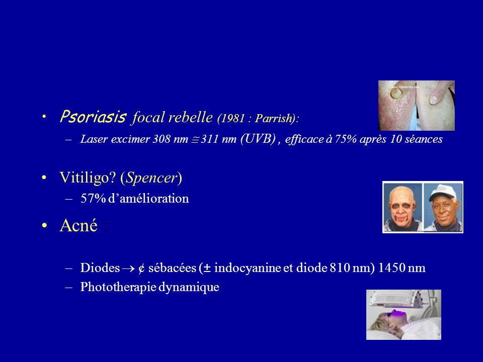Acné : Psoriasis focal rebelle (1981 : Parrish): Vitiligo (Spencer)