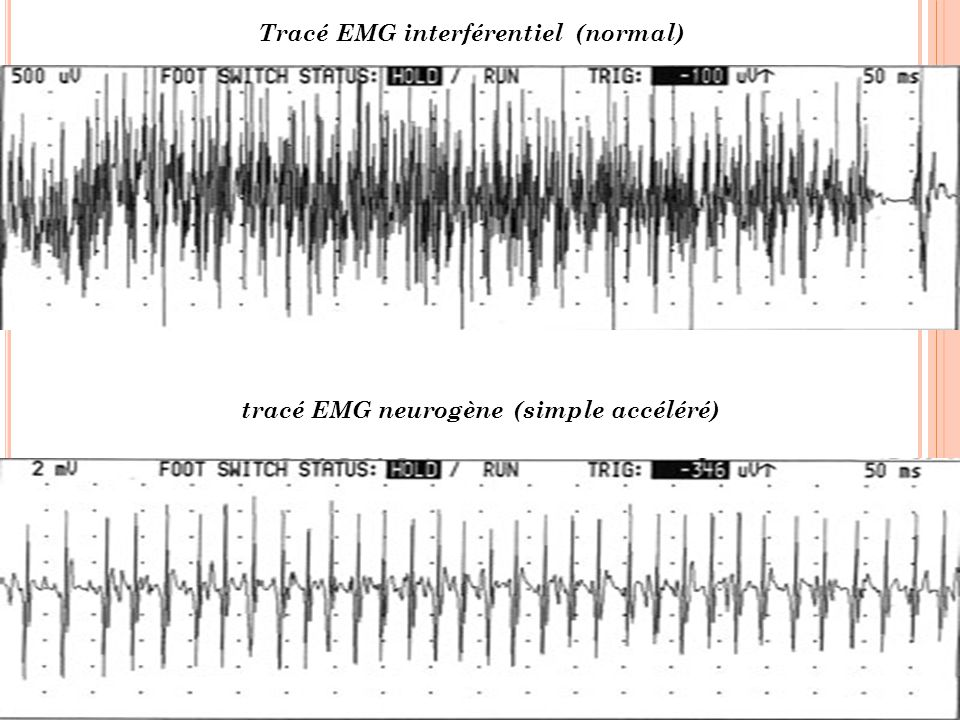 tracé EMG neurogène (simple accéléré)