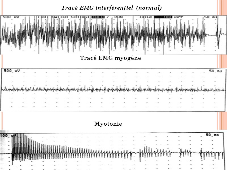 Tracé EMG interférentiel (normal)