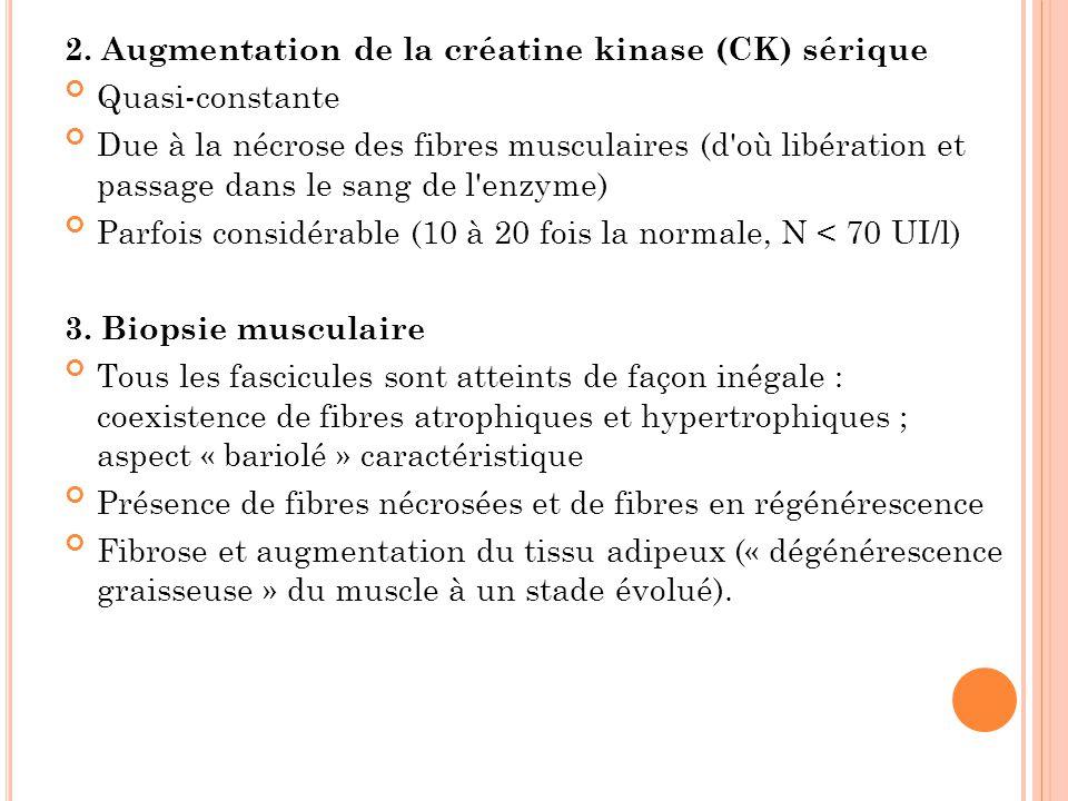 2. Augmentation de la créatine kinase (CK) sérique