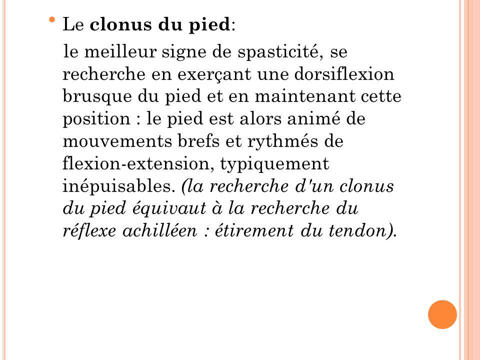 Le clonus du pied: