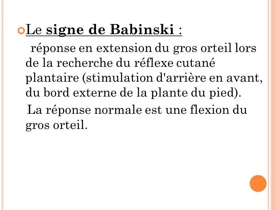 Le signe de Babinski :