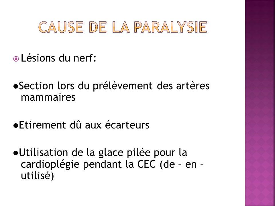 cause de la paralysie Lésions du nerf: