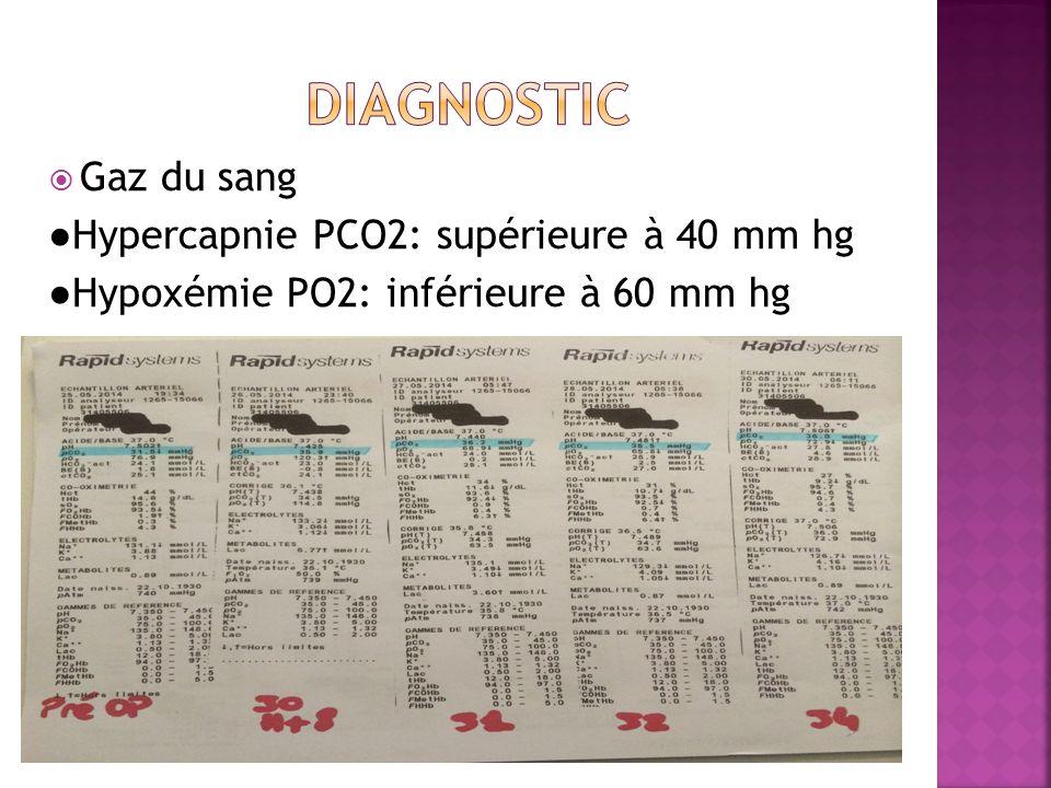 diagnostic Gaz du sang ●Hypercapnie PCO2: supérieure à 40 mm hg