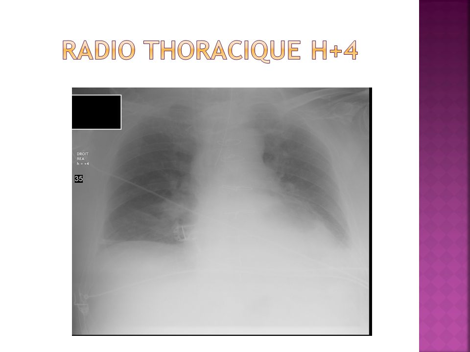 RADIO THORACIQUE H+4