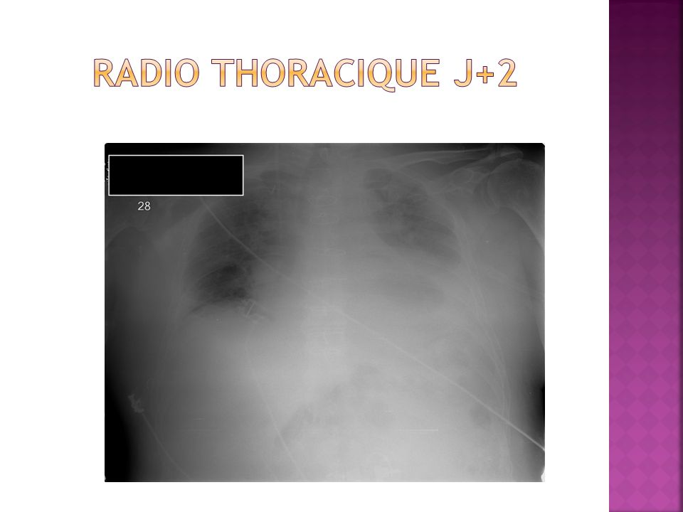 Radio thoracique J+2