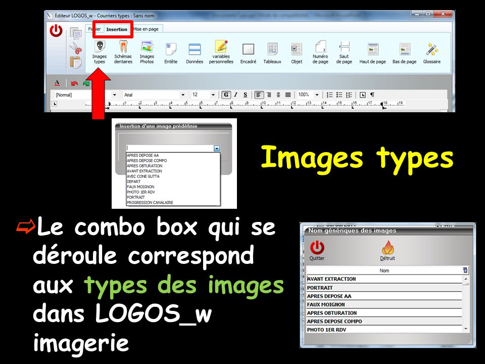 Images types Le combo box qui se déroule correspond aux types des images dans LOGOS_w imagerie